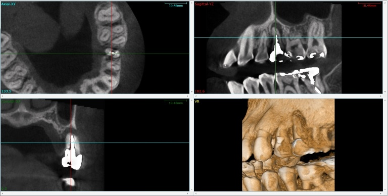 CT撮影画像